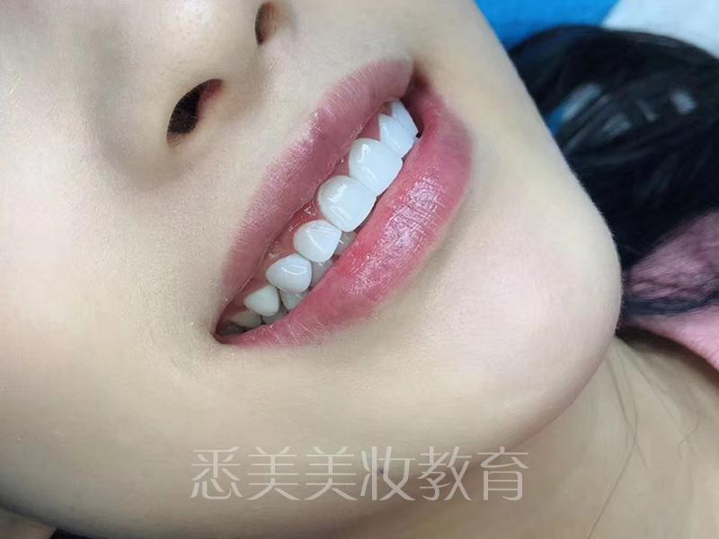德国纳米树脂牙齿美白技术广州班