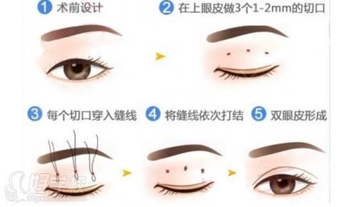 北京韩京国际医美教育学院 韩式定点双眼皮