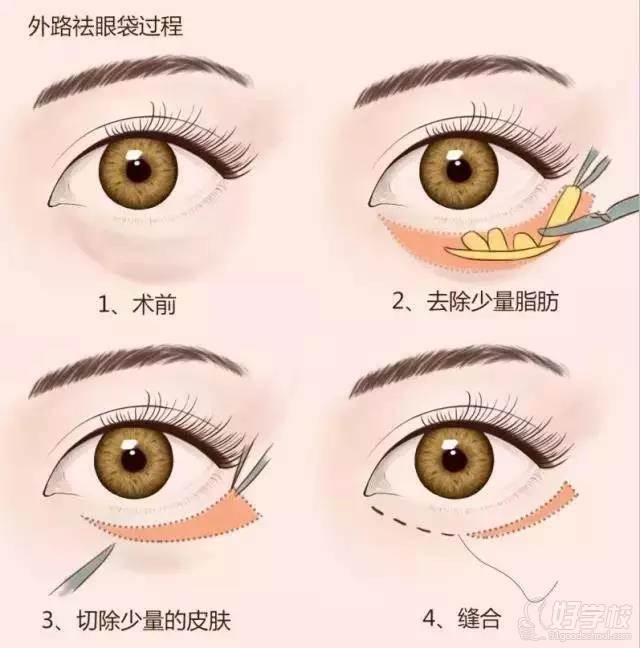北京韩京国际医美教育学院 外切祛眼袋