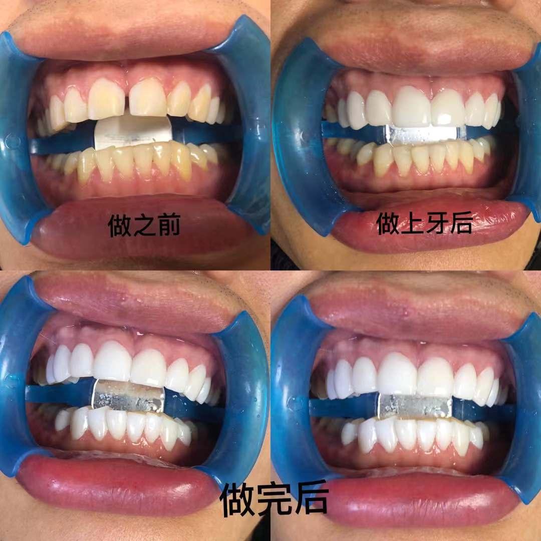 上海纳米树脂美牙培训班