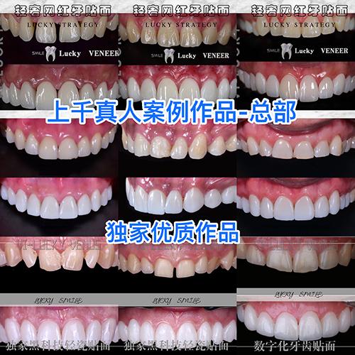 美牙综合培训课程